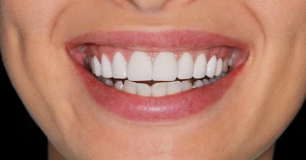 バーべインは歯茎の健康に効果的
